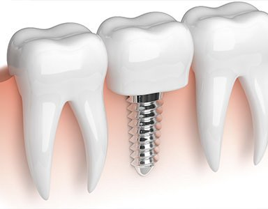 The global dental implants market is steadily growing as the demand for better dental care rises. According to the Dental Implants and Prosthetics Market Global Forecast, revenue for the dental implan...